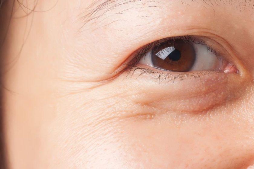 Best Ways for Removing Dark Circles under the Eyes